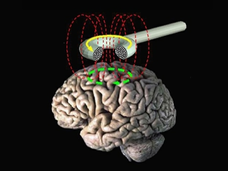 TranscranialMagneticStimulation.jpg Foundation for Alternati