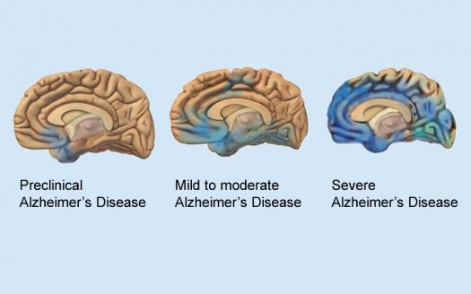 Image Courtesy Of The National Institute On Aging National Institutes Of Health Illustration Of How Alzheimers Disease