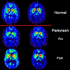 PET scan showing progression of Parkinson's disease