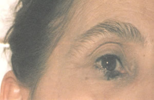 eye before treatment