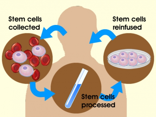 Why Can't We Use Our Own Stem Cells to Heal Our Bodies? | Foundation